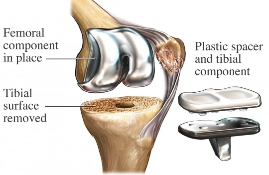 Fast Track Total Knee Replacement: A Patient Guide